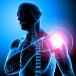Rotator Cuff (Impingement) Syndrome
